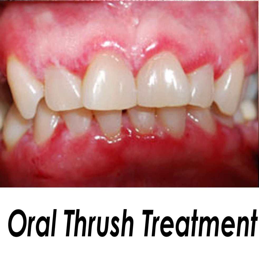 oral thrush – natural treatment for oral thrush, Skeleton